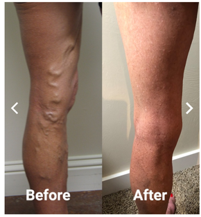Vein disease center in Winston Salem