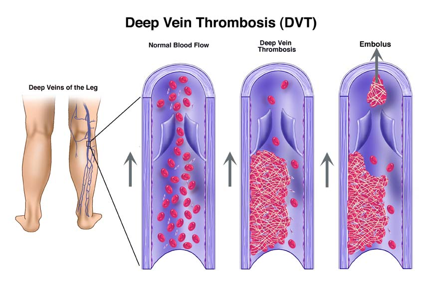Deep Vein Thrombosis DVT